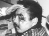 Treating an eye injury, Matt Talbot Center. (From Photo Gallery III: The Skid Road Years - Part 1)